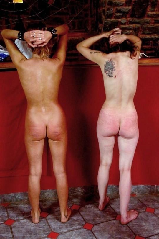 【超・閲・覧・注・意】ドSの彼氏と2年付き合った女性のお尻がコチラ(画像24枚)・20枚目