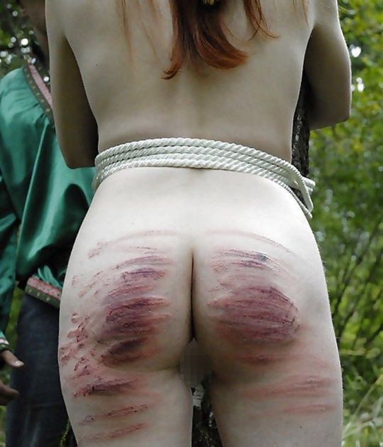 【超・閲・覧・注・意】ドSの彼氏と2年付き合った女性のお尻がコチラ(画像24枚)・10枚目