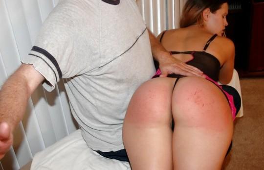 【超・閲・覧・注・意】ドSの彼氏と2年付き合った女性のお尻がコチラ(画像24枚)・14枚目