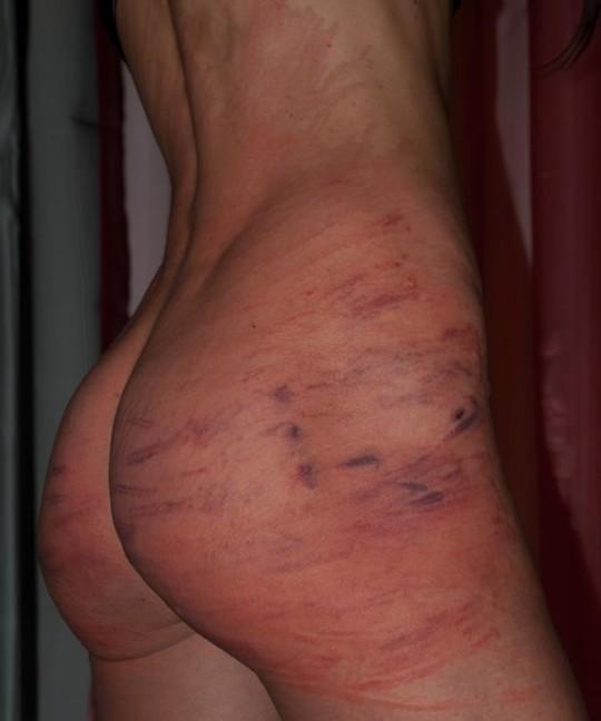 【超・閲・覧・注・意】ドSの彼氏と2年付き合った女性のお尻がコチラ(画像24枚)・5枚目