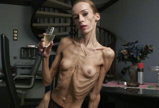 【※超・閲覧注意】重度拒食症女性のヌード画像怖すぎ・・コレ生きてんのか。。(画像25枚)・6枚目