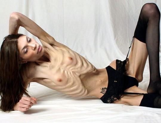 【※超・閲覧注意】重度拒食症女性のヌード画像怖すぎ・・コレ生きてんのか。。(画像25枚)・7枚目