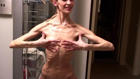 【※超・閲覧注意】重度拒食症女性のヌード画像怖すぎ・・コレ生きてんのか。。(画像25枚)・14枚目