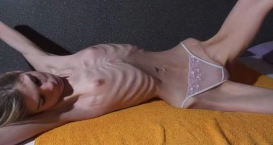 【※超・閲覧注意】重度拒食症女性のヌード画像怖すぎ・・コレ生きてんのか。。(画像25枚)・16枚目