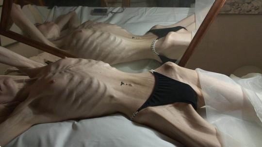 【※超・閲覧注意】重度拒食症女性のヌード画像怖すぎ・・コレ生きてんのか。。(画像25枚)・17枚目