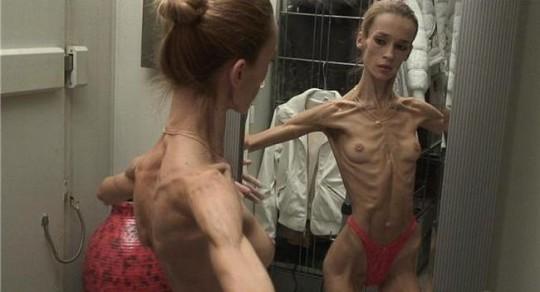 【※超・閲覧注意】重度拒食症女性のヌード画像怖すぎ・・コレ生きてんのか。。(画像25枚)・18枚目