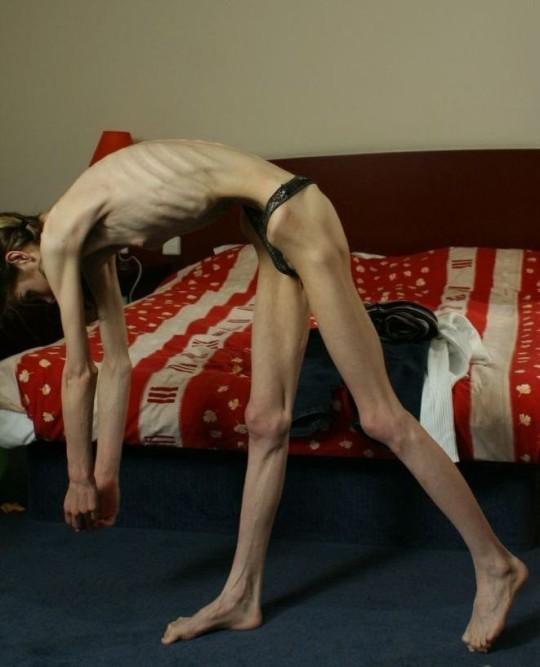 【※超・閲覧注意】重度拒食症女性のヌード画像怖すぎ・・コレ生きてんのか。。(画像25枚)・22枚目
