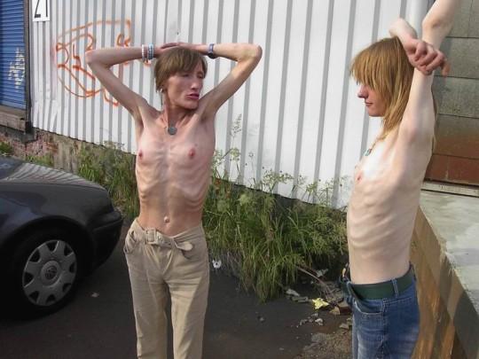 【※超・閲覧注意】重度拒食症女性のヌード画像怖すぎ・・コレ生きてんのか。。(画像25枚)・23枚目