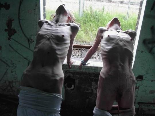 【※超・閲覧注意】重度拒食症女性のヌード画像怖すぎ・・コレ生きてんのか。。(画像25枚)・24枚目