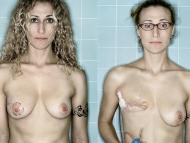 【※閲覧注意※】乳がんで乳房を摘出した女性の画像を貼る「超・上級者向けスレ」