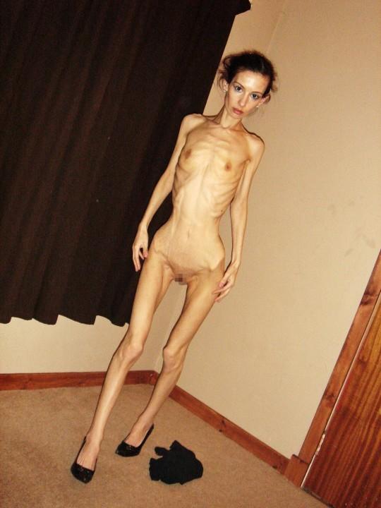 【※閲覧注意】拒食症女性ヌード画像スレ → 「これ死んでますわ」「これは死んでますわ」「うん、これは死んでますわ」・1枚目