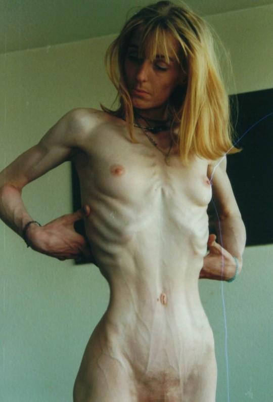 【※閲覧注意】拒食症女性ヌード画像スレ → 「これ死んでますわ」「これは死んでますわ」「うん、これは死んでますわ」・2枚目