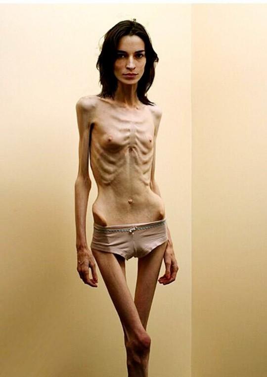 【※閲覧注意】拒食症女性ヌード画像スレ → 「これ死んでますわ」「これは死んでますわ」「うん、これは死んでますわ」・3枚目