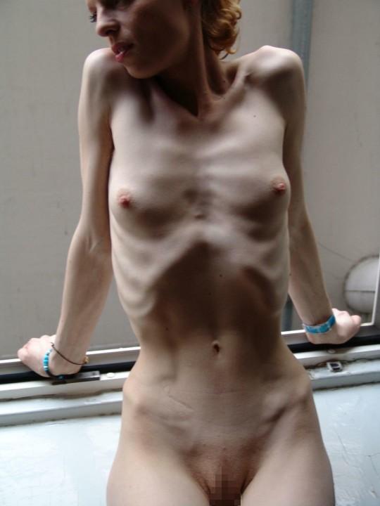 【※閲覧注意】拒食症女性ヌード画像スレ → 「これ死んでますわ」「これは死んでますわ」「うん、これは死んでますわ」・4枚目