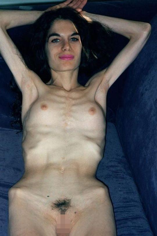 【※閲覧注意】拒食症女性ヌード画像スレ → 「これ死んでますわ」「これは死んでますわ」「うん、これは死んでますわ」・10枚目
