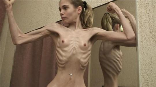 【※閲覧注意】拒食症女性ヌード画像スレ → 「これ死んでますわ」「これは死んでますわ」「うん、これは死んでますわ」・13枚目