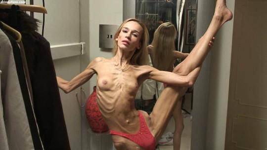 【※閲覧注意】拒食症女性ヌード画像スレ → 「これ死んでますわ」「これは死んでますわ」「うん、これは死んでますわ」・14枚目