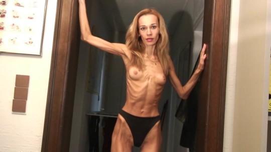 【※閲覧注意】拒食症女性ヌード画像スレ → 「これ死んでますわ」「これは死んでますわ」「うん、これは死んでますわ」・15枚目