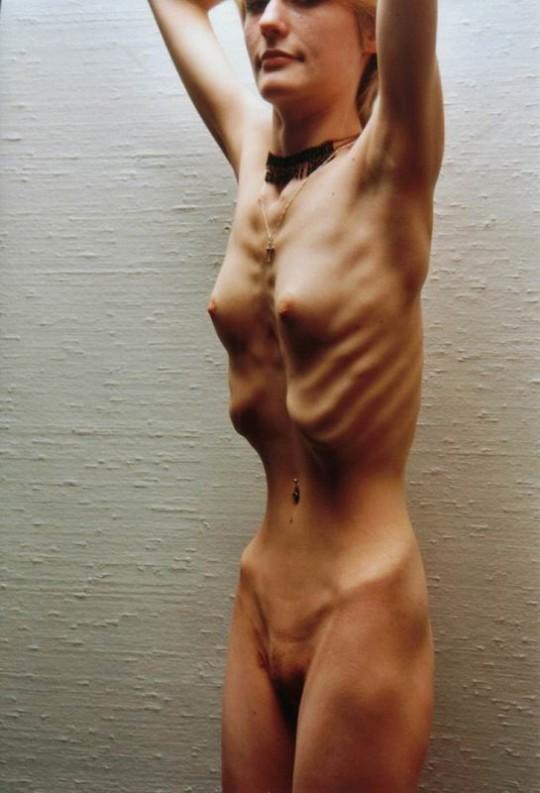【※閲覧注意】拒食症女性ヌード画像スレ → 「これ死んでますわ」「これは死んでますわ」「うん、これは死んでますわ」・17枚目