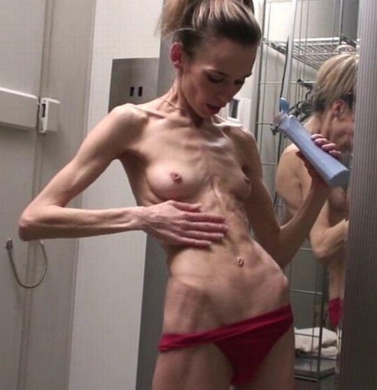 【※閲覧注意】拒食症女性ヌード画像スレ → 「これ死んでますわ」「これは死んでますわ」「うん、これは死んでますわ」・18枚目