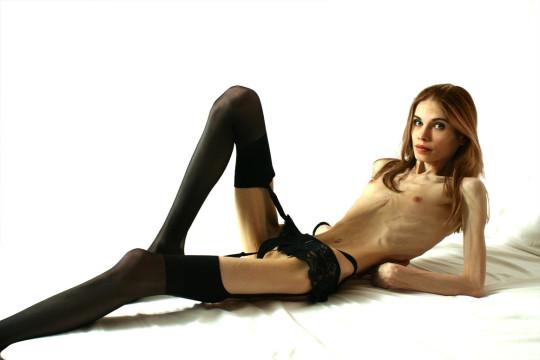 【※閲覧注意】拒食症女性ヌード画像スレ → 「これ死んでますわ」「これは死んでますわ」「うん、これは死んでますわ」・21枚目