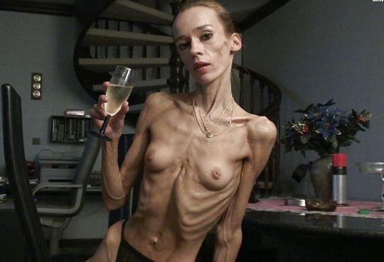 【※閲覧注意】拒食症女性ヌード画像スレ → 「これ死んでますわ」「これは死んでますわ」「うん、これは死んでますわ」・22枚目
