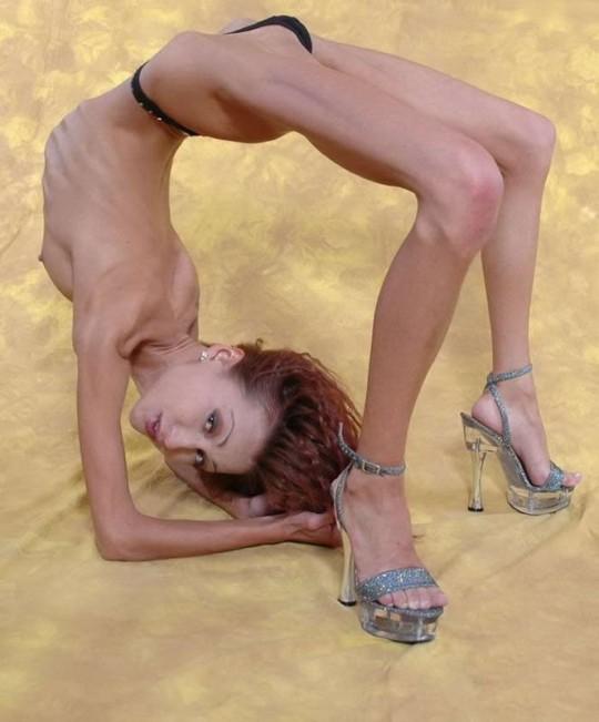 【※閲覧注意】拒食症女性ヌード画像スレ → 「これ死んでますわ」「これは死んでますわ」「うん、これは死んでますわ」・27枚目