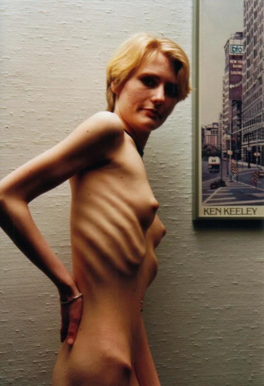 【※閲覧注意】拒食症女性ヌード画像スレ → 「これ死んでますわ」「これは死んでますわ」「うん、これは死んでますわ」・12枚目