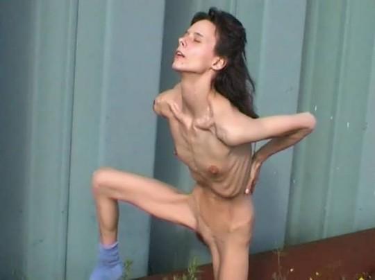 【※閲覧注意】コラレベルに閲覧注意な拒食症女性のエロ画像貼ってく。(画像30枚)・3枚目