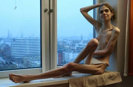 【※閲覧注意】コラレベルに閲覧注意な拒食症女性のエロ画像貼ってく。(画像30枚)・5枚目