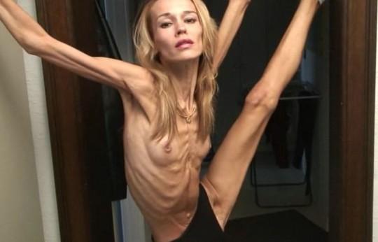 【※閲覧注意】コラレベルに閲覧注意な拒食症女性のエロ画像貼ってく。(画像30枚)・6枚目
