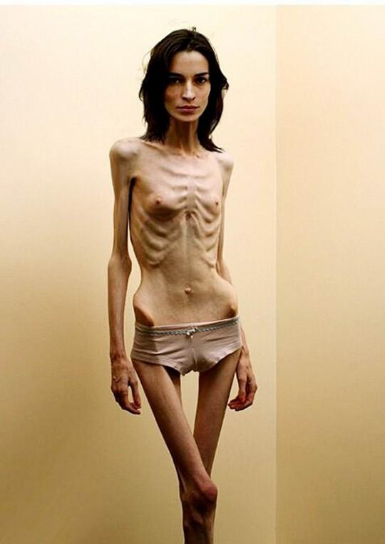 【※閲覧注意】コラレベルに閲覧注意な拒食症女性のエロ画像貼ってく。(画像30枚)・7枚目