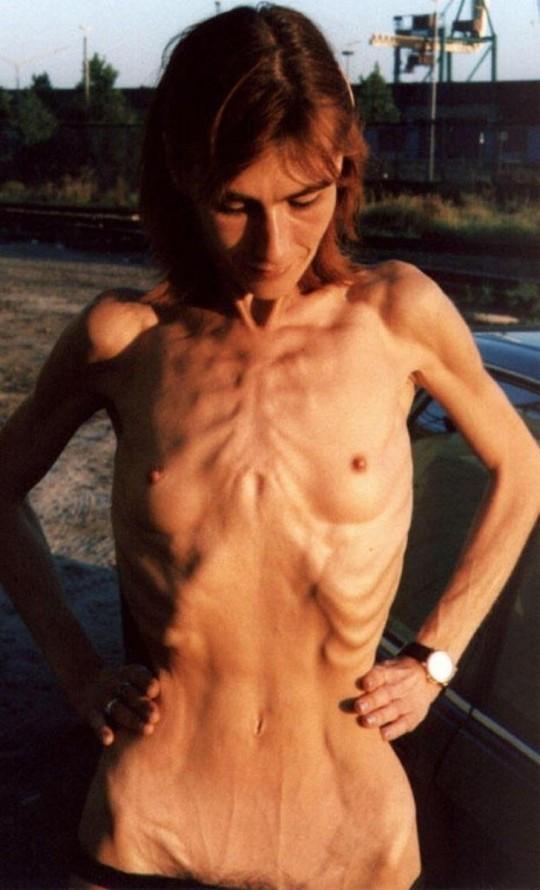 【※閲覧注意】コラレベルに閲覧注意な拒食症女性のエロ画像貼ってく。(画像30枚)・8枚目