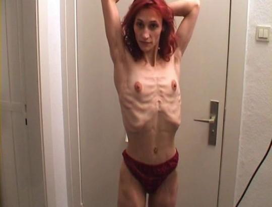 【※閲覧注意】コラレベルに閲覧注意な拒食症女性のエロ画像貼ってく。(画像30枚)・10枚目