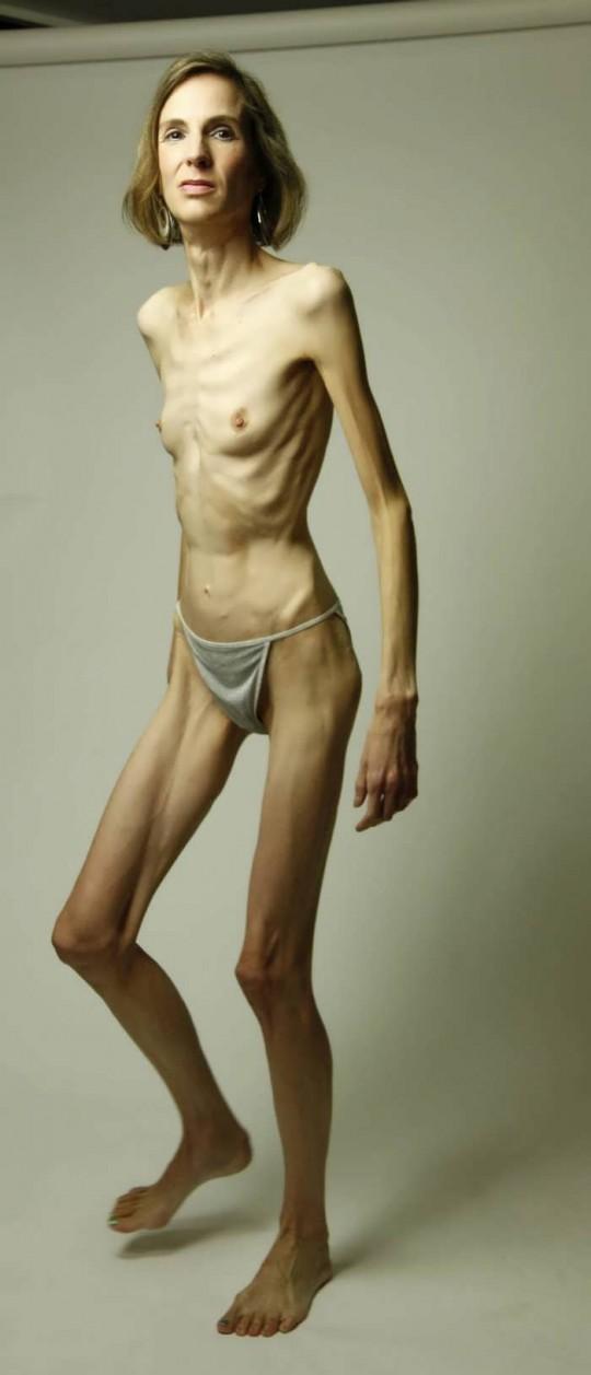 【※閲覧注意】コラレベルに閲覧注意な拒食症女性のエロ画像貼ってく。(画像30枚)・14枚目