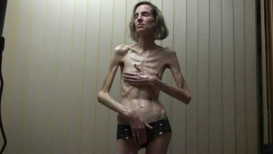 【※閲覧注意】コラレベルに閲覧注意な拒食症女性のエロ画像貼ってく。(画像30枚)・15枚目