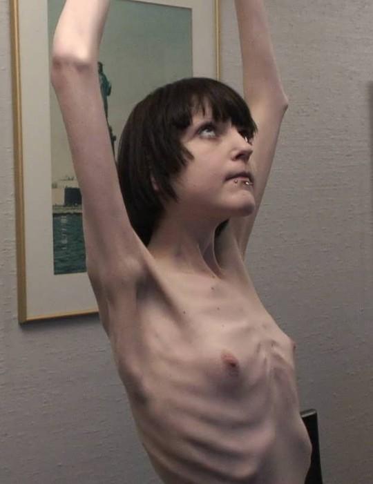 【※閲覧注意】コラレベルに閲覧注意な拒食症女性のエロ画像貼ってく。(画像30枚)・16枚目