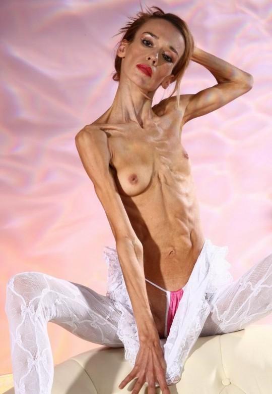 【※閲覧注意】コラレベルに閲覧注意な拒食症女性のエロ画像貼ってく。(画像30枚)・17枚目