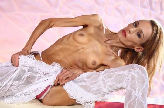 【※閲覧注意】コラレベルに閲覧注意な拒食症女性のエロ画像貼ってく。(画像30枚)・18枚目