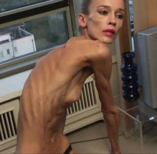 【※閲覧注意】コラレベルに閲覧注意な拒食症女性のエロ画像貼ってく。(画像30枚)・19枚目