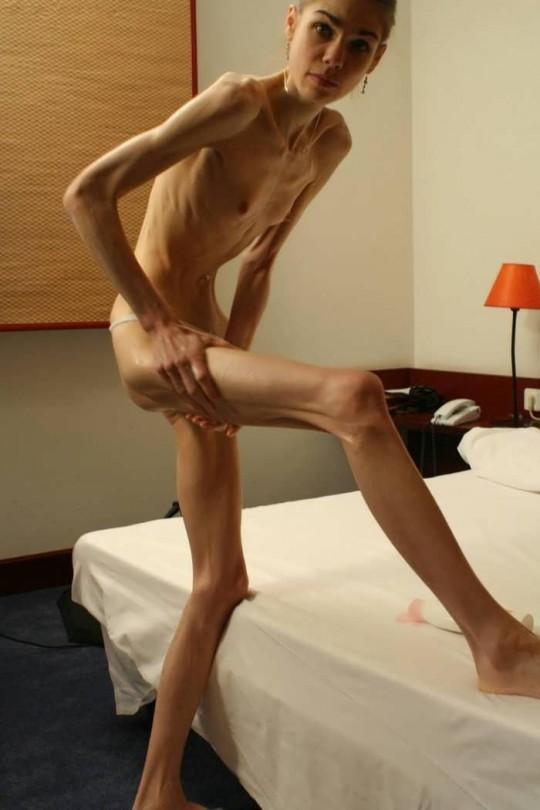 【※閲覧注意】コラレベルに閲覧注意な拒食症女性のエロ画像貼ってく。(画像30枚)・20枚目