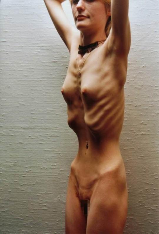 【※閲覧注意】コラレベルに閲覧注意な拒食症女性のエロ画像貼ってく。(画像30枚)・23枚目