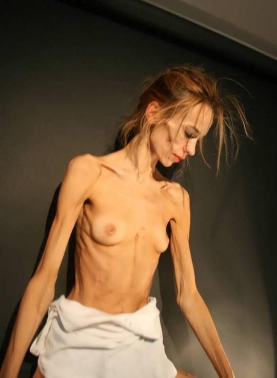 【※閲覧注意】コラレベルに閲覧注意な拒食症女性のエロ画像貼ってく。(画像30枚)・24枚目