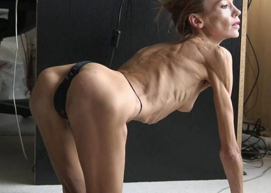 【※閲覧注意】コラレベルに閲覧注意な拒食症女性のエロ画像貼ってく。(画像30枚)・25枚目