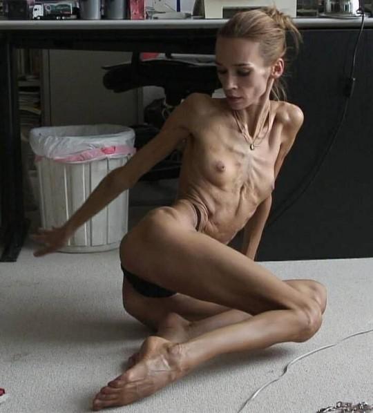 【※閲覧注意】コラレベルに閲覧注意な拒食症女性のエロ画像貼ってく。(画像30枚)・26枚目