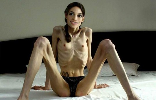 【※閲覧注意】コラレベルに閲覧注意な拒食症女性のエロ画像貼ってく。(画像30枚)・30枚目