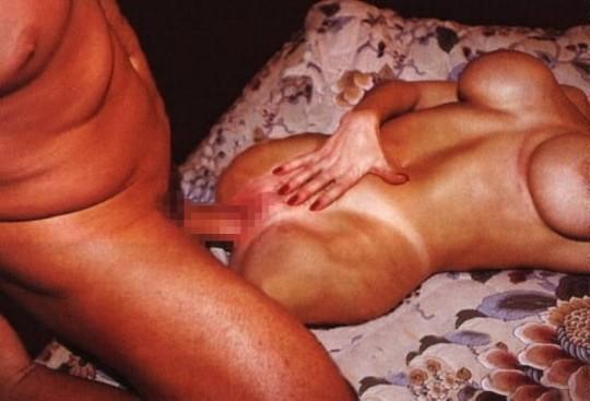 【閲覧注意】四肢欠損してる障害者女性がセクロスしてる画像集 → 切断面怖すぎ頭に焼き付いたわ・・(画像23枚)・14枚目