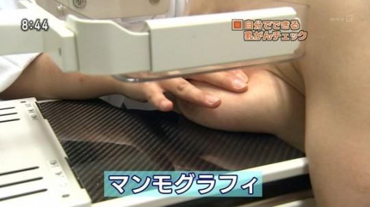 【※エロ目線禁止】ひとまずTVの乳がん検診キャプ貼ってくwwwwwwwwwwwwwwwwwww(画像あり)・2枚目