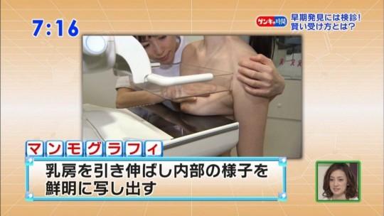 【※エロ目線禁止】ひとまずTVの乳がん検診キャプ貼ってくwwwwwwwwwwwwwwwwwww(画像あり)・10枚目