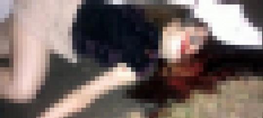【閲覧注意】レイプされた後ポアされた女性の画像貼ってく。脚無いのとかもう理解不能・・(画像22枚)・2枚目